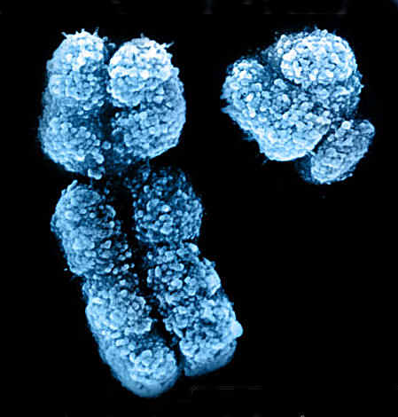 Karakalpak Genetics X And Y Chromosomes